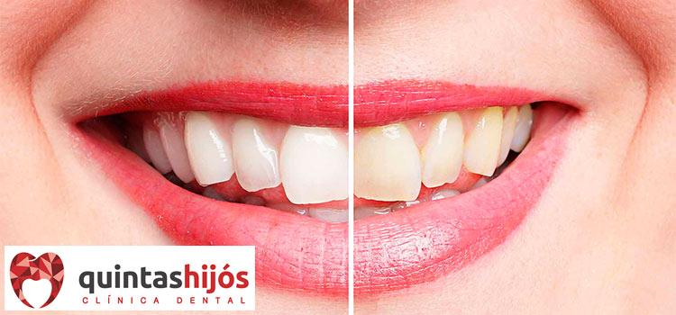 blanqueamiento-dental-huesca