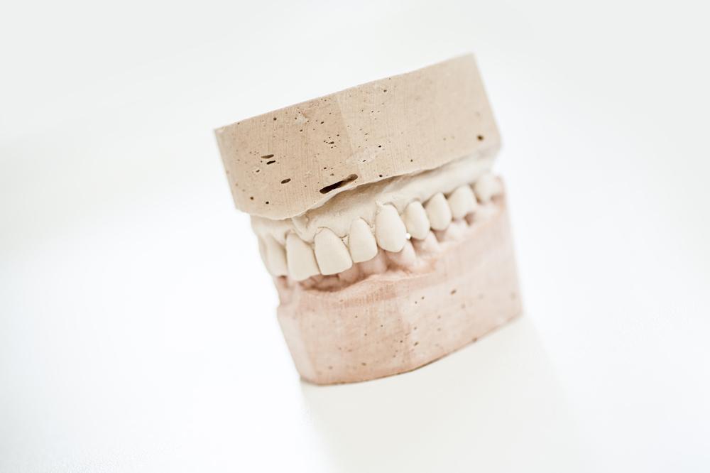 protesis-dentales-huesca